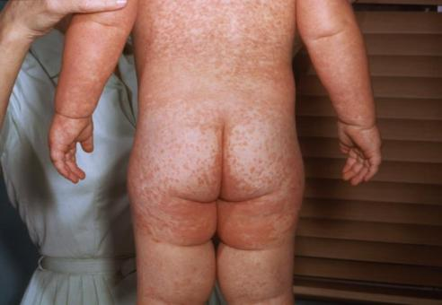 Measles_rash_PHIL_4497_lores